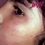 پیگیری کتک زدن کودک توسط دندانپزشک اصفهانی