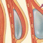 عوارض احتمالی بعد از جراحی زیبایی سینه
